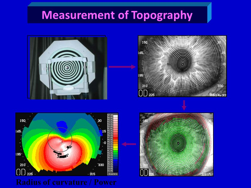 Measurement of Topography