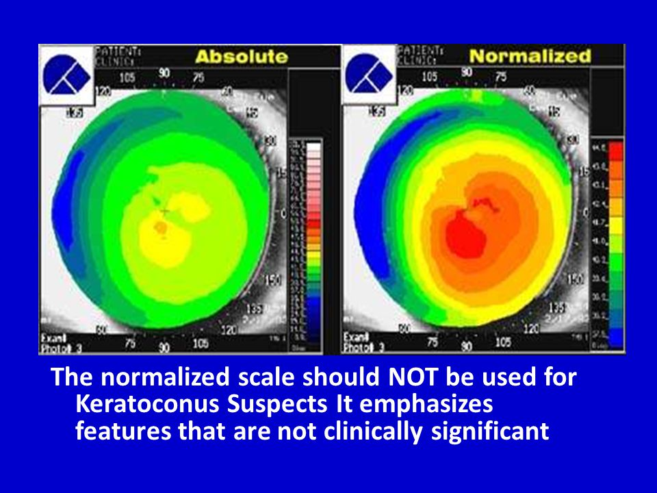 The normalized scale should NOT be used for Keratoconus Suspects It emphasizes features that are not clinically significant