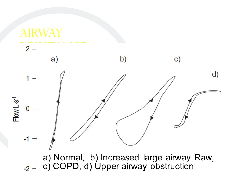 Airway Resistance a) Normal, b) Increased large airway Raw, c) COPD, d) Upper airway obstruction