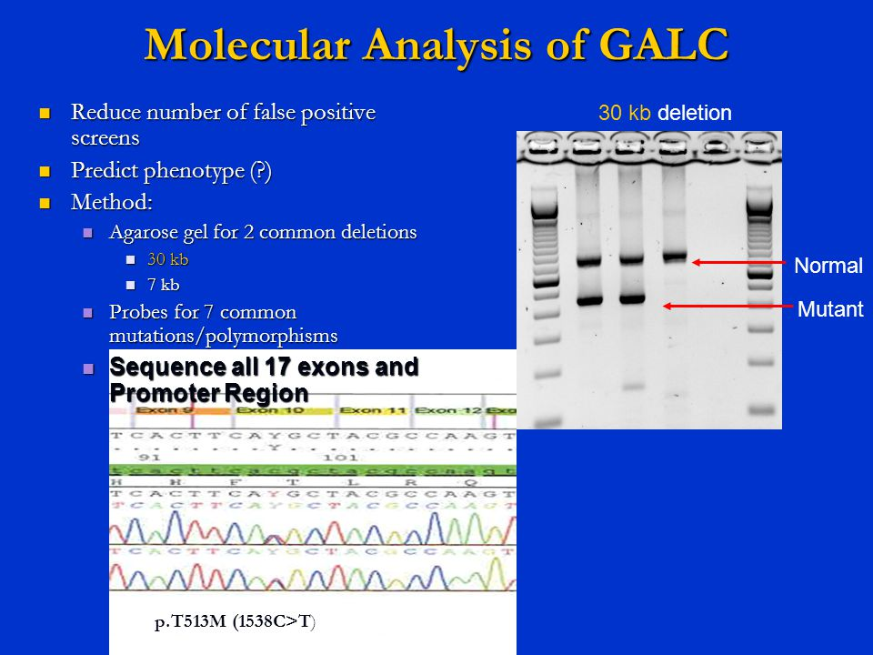 Molecular Analysis of GALC