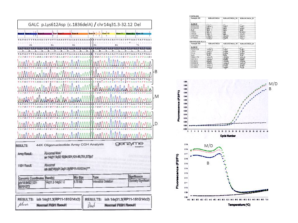 GALC p.Lys612Asp (c.1836delA) / chr14q31.3-32.12 Del