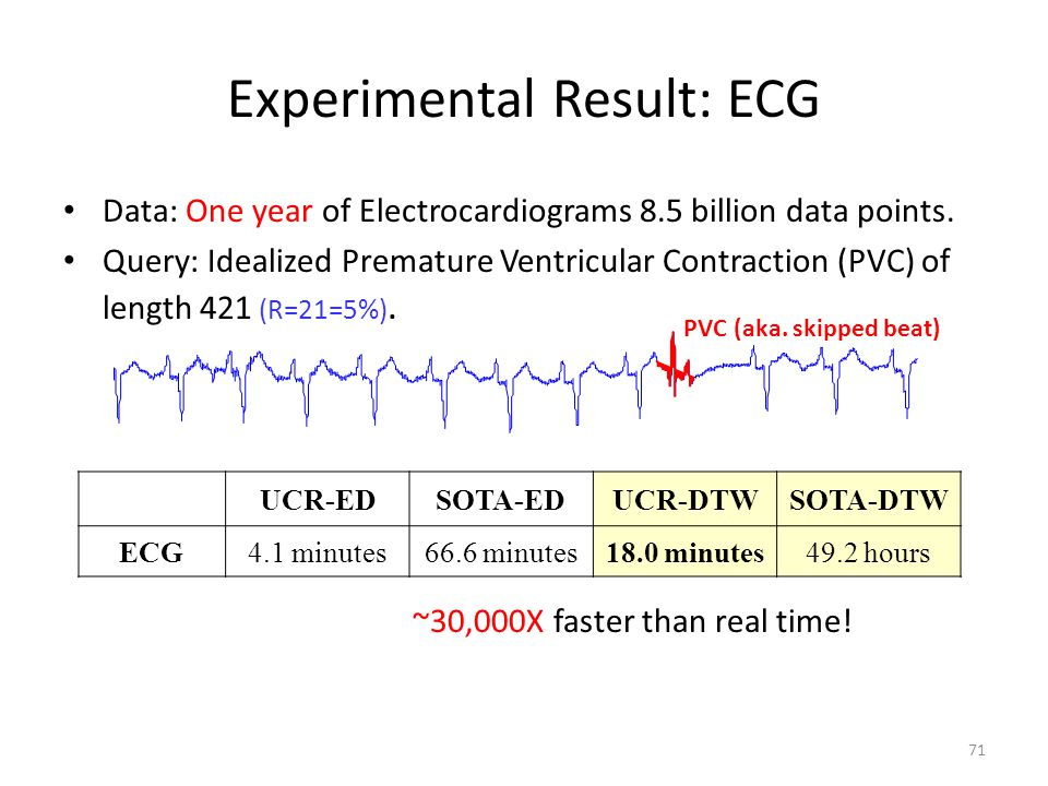 Experimental Result: ECG