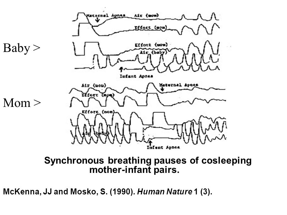 Figure Synchronous breathing pauses of cosleeping mother-infant pairs.