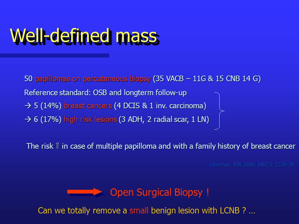 Well-defined mass 50 papillomas on percutaneous biopsy (35 VACB – 11G & 15 CNB 14 G) Reference standard: OSB and longterm follow-up.