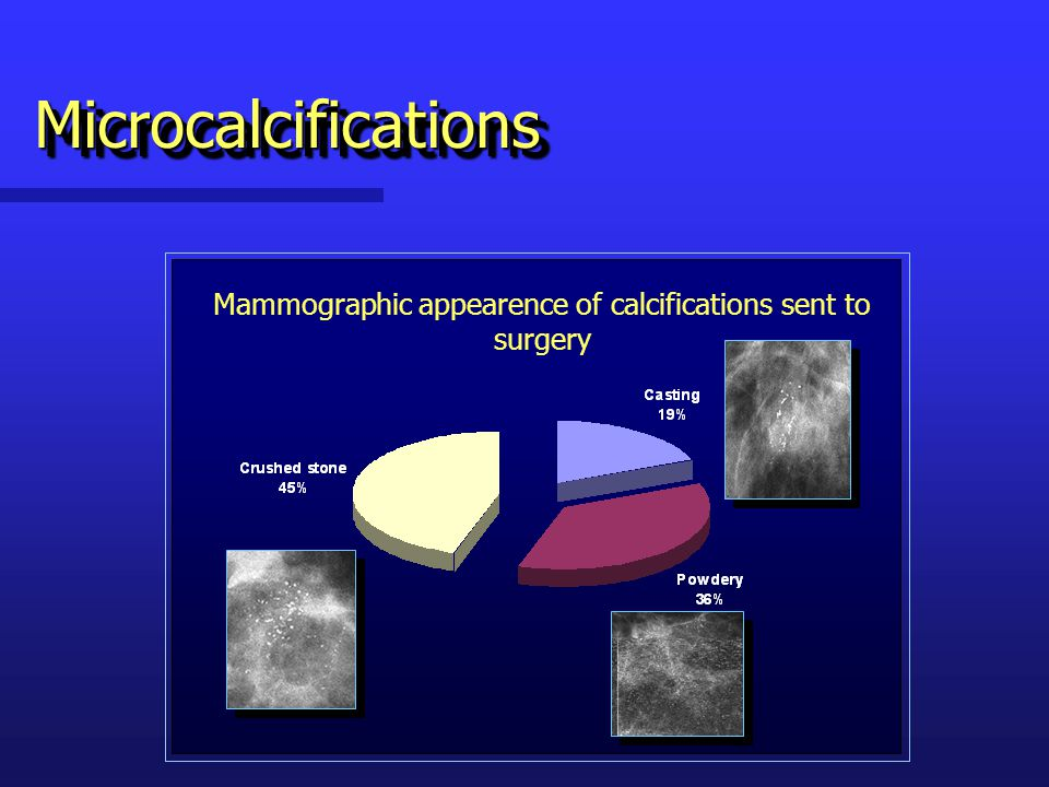 Mammographic appearence of calcifications sent to surgery