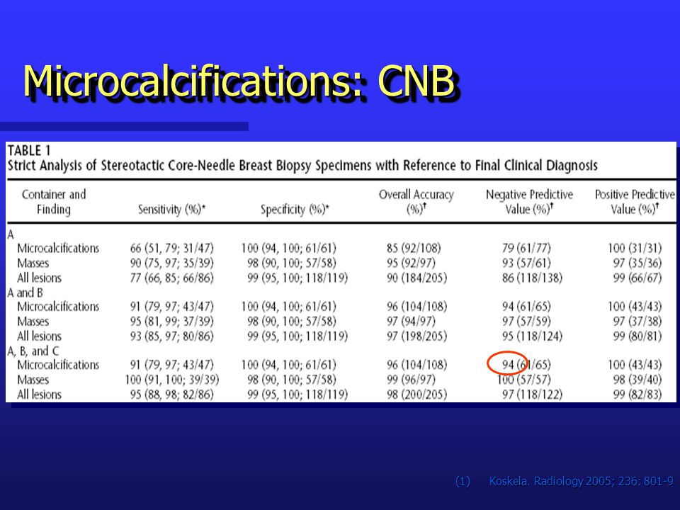 Microcalcifications: CNB