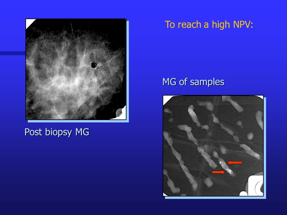 To reach a high NPV: MG of samples Post biopsy MG
