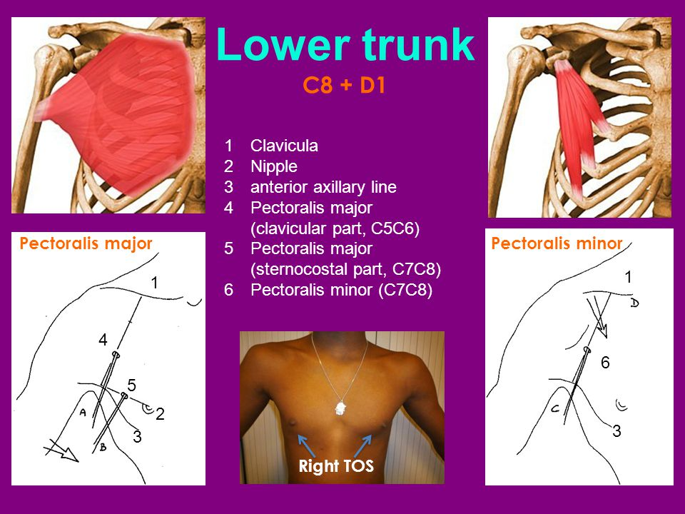 Lower trunk C8 + D1 1 Clavicula 2 Nipple 3 anterior axillary line