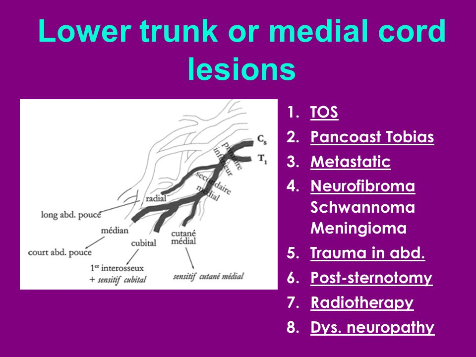 Lower trunk or medial cord lesions