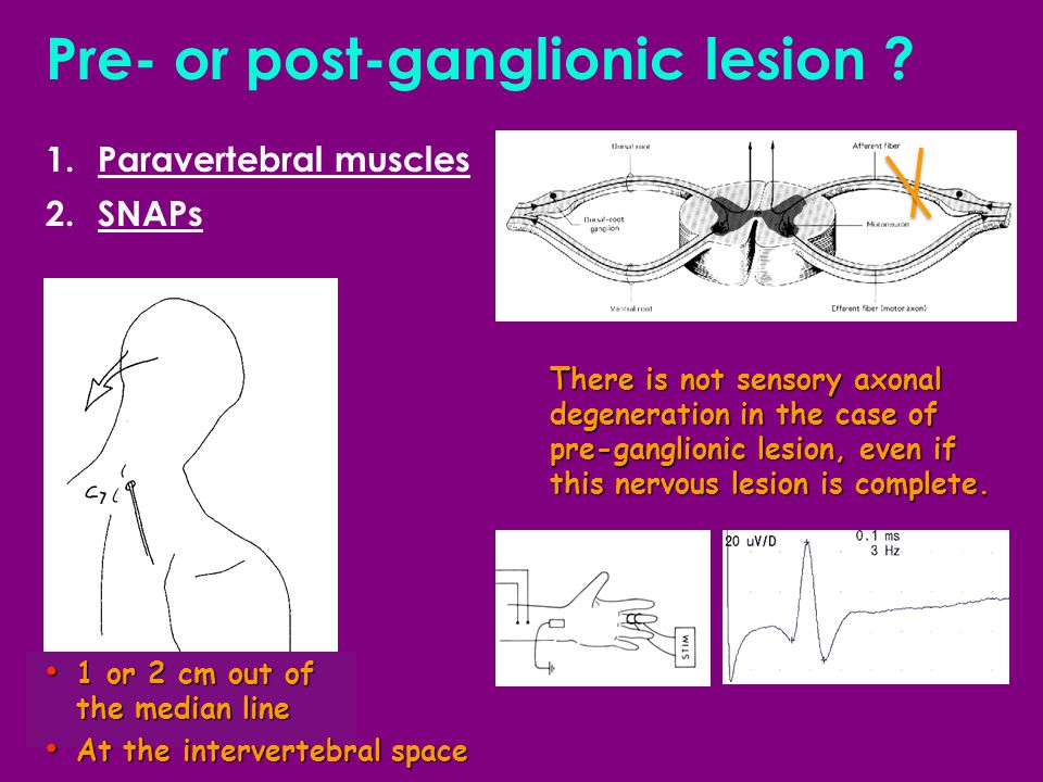 Pre- or post-ganglionic lesion