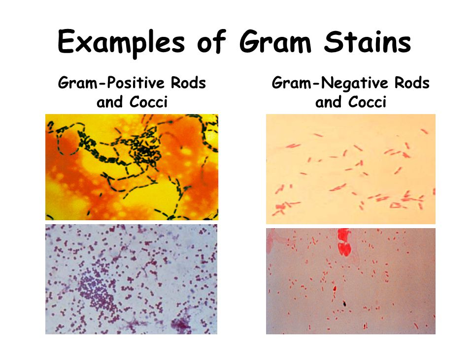 Examples of Gram Stains Gram-Negative Rods and Cocci