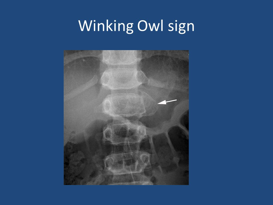 Winking Owl sign