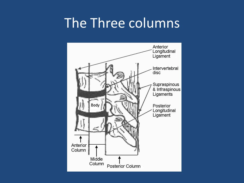The Three columns
