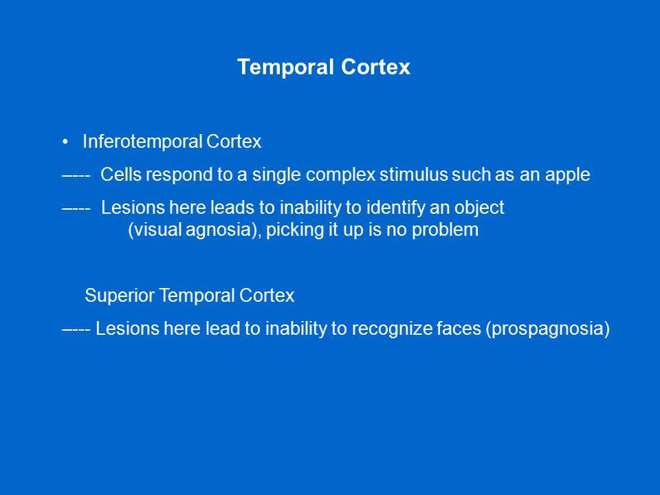 • Inferotemporal Cortex