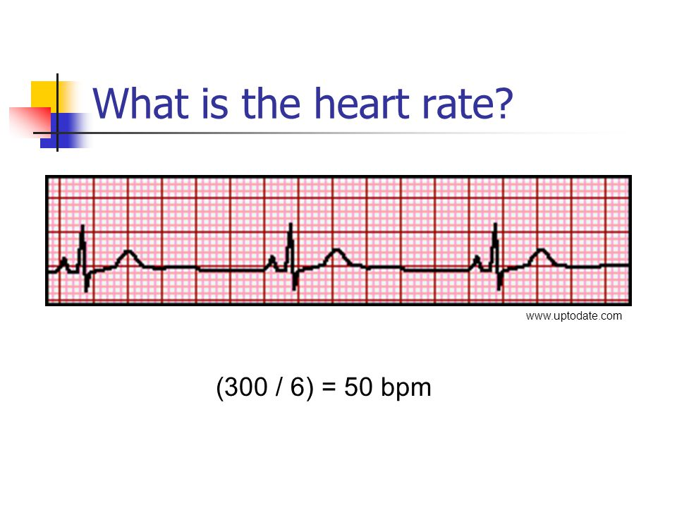 What is the heart rate www.uptodate.com (300 / 6) = 50 bpm