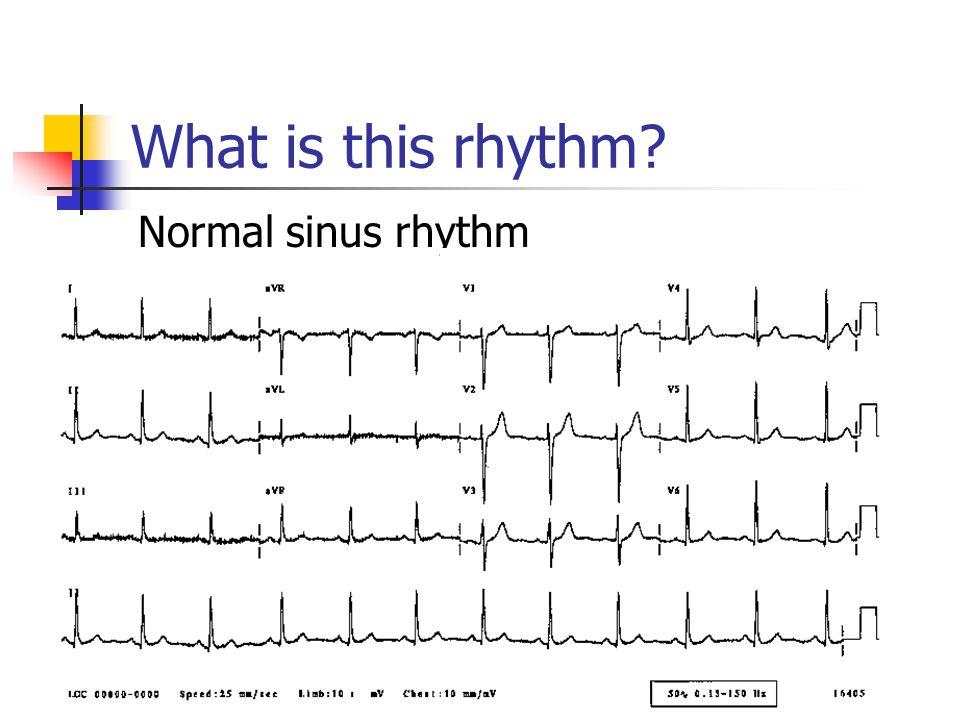 What is this rhythm Normal sinus rhythm
