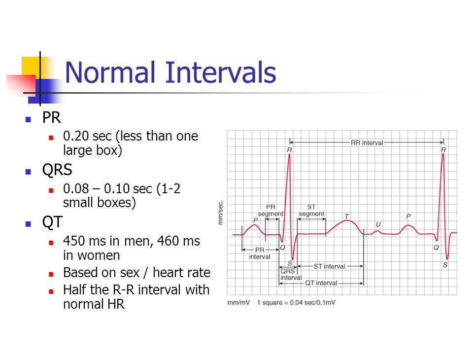 Normal Intervals PR QRS QT 0.20 sec (less than one large box)
