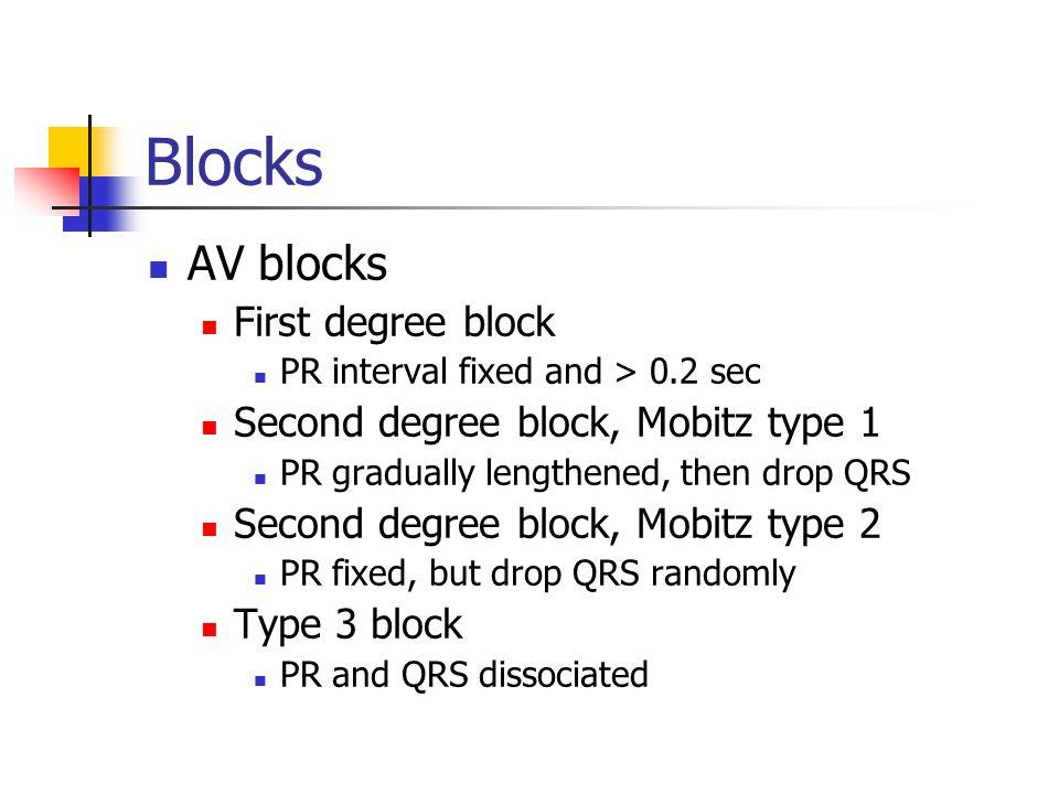 Blocks AV blocks First degree block Second degree block, Mobitz type 1