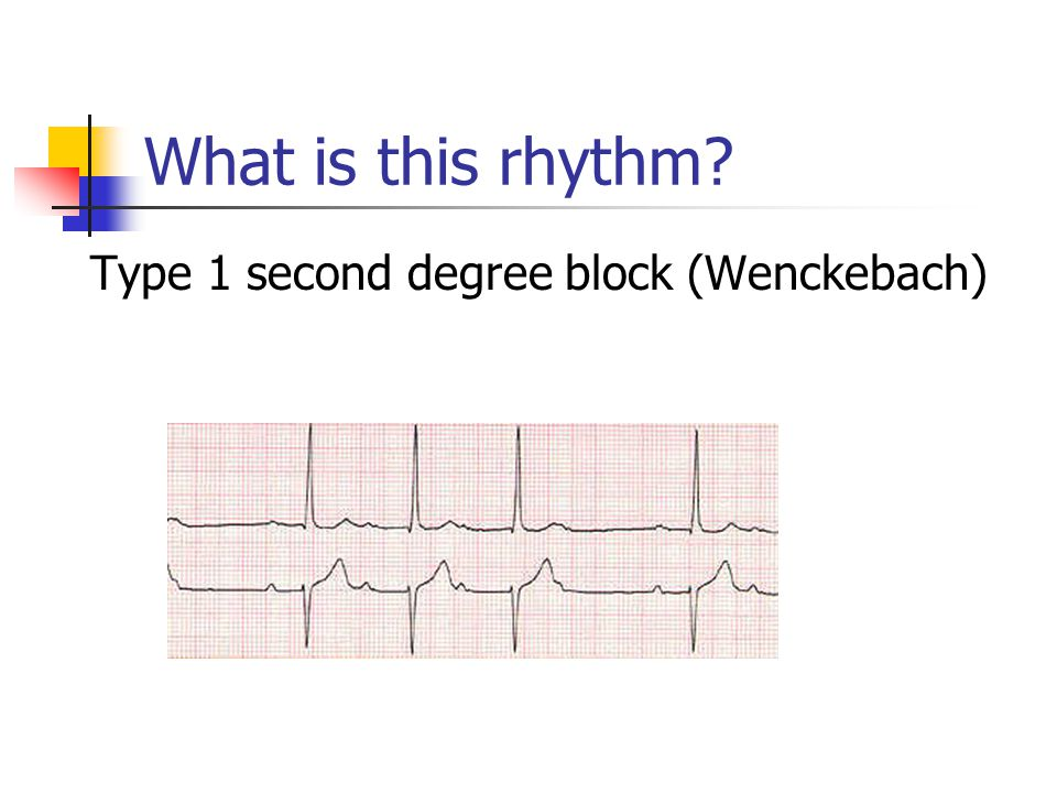 What is this rhythm Type 1 second degree block (Wenckebach)