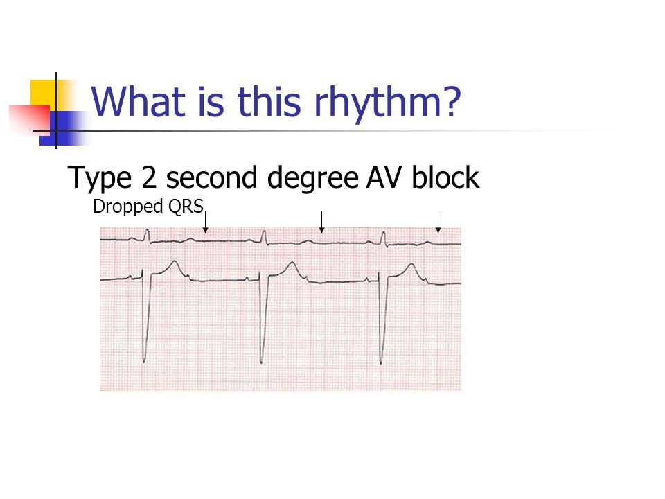What is this rhythm Type 2 second degree AV block Dropped QRS