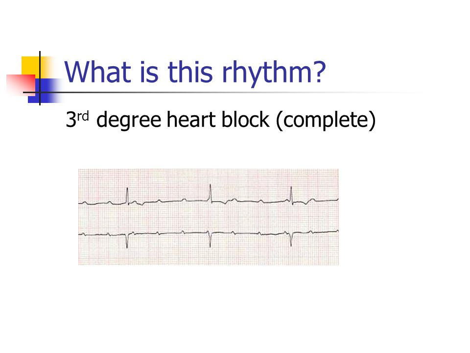 What is this rhythm 3rd degree heart block (complete)
