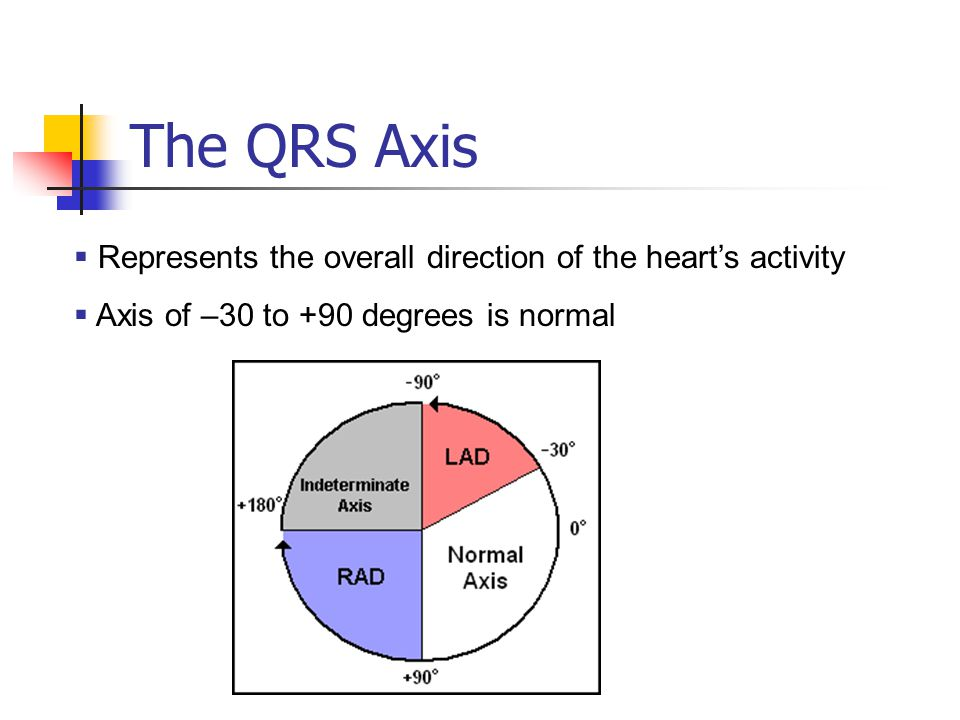 The QRS Axis Represents the overall direction of the heart's activity