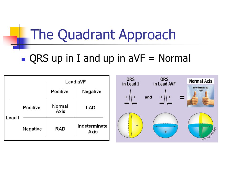 The Quadrant Approach QRS up in I and up in aVF = Normal