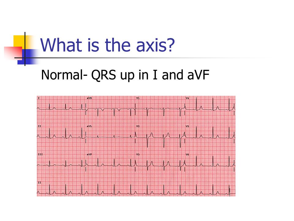 What is the axis Normal- QRS up in I and aVF