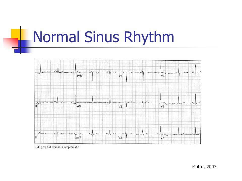 Normal Sinus Rhythm Mattu, 2003