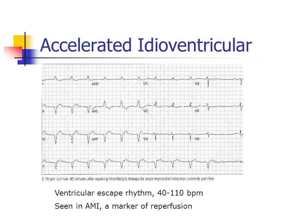 Accelerated Idioventricular