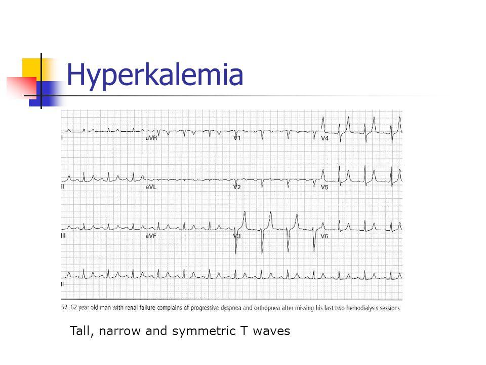 Hyperkalemia Tall, narrow and symmetric T waves