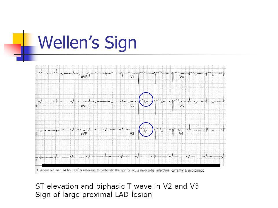 Wellen's Sign ST elevation and biphasic T wave in V2 and V3