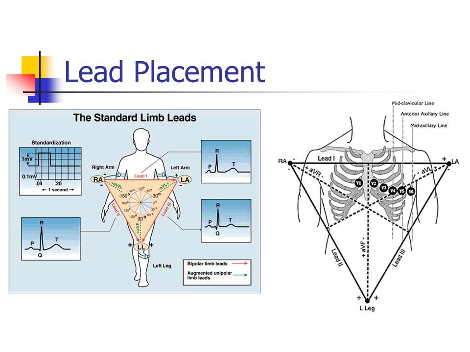 Lead Placement aVF
