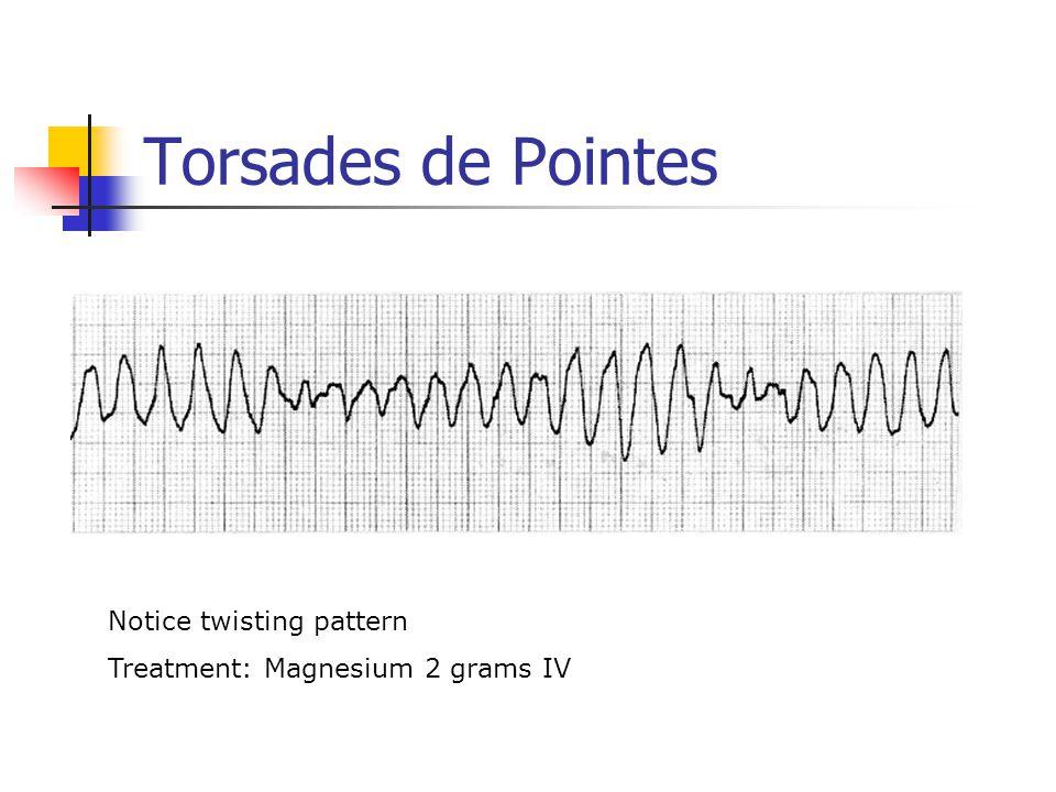 Torsades de Pointes Notice twisting pattern