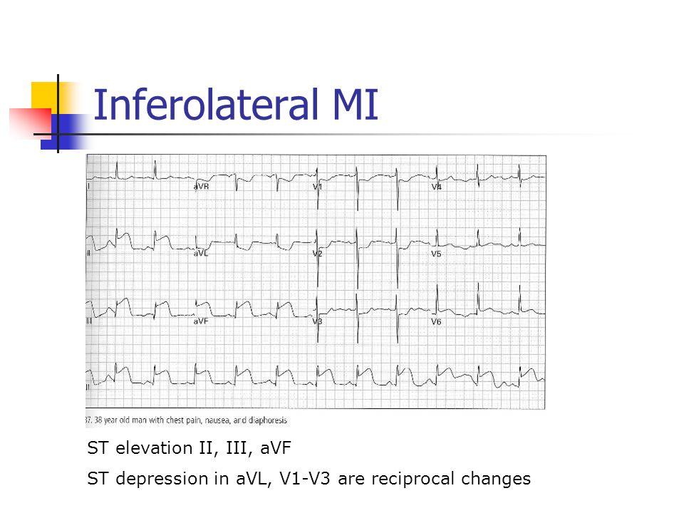 Inferolateral MI ST elevation II, III, aVF