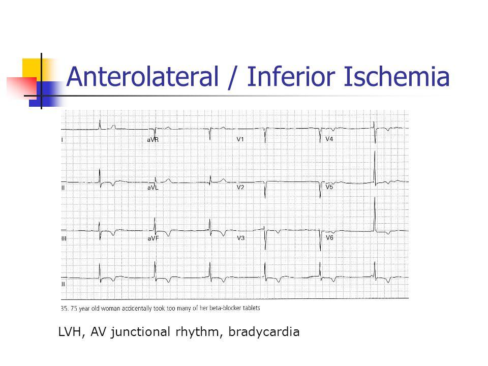 Anterolateral / Inferior Ischemia