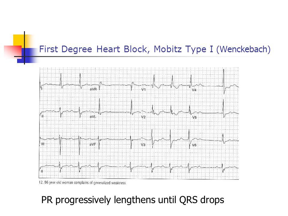First Degree Heart Block, Mobitz Type I (Wenckebach)