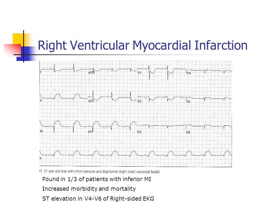 Right Ventricular Myocardial Infarction