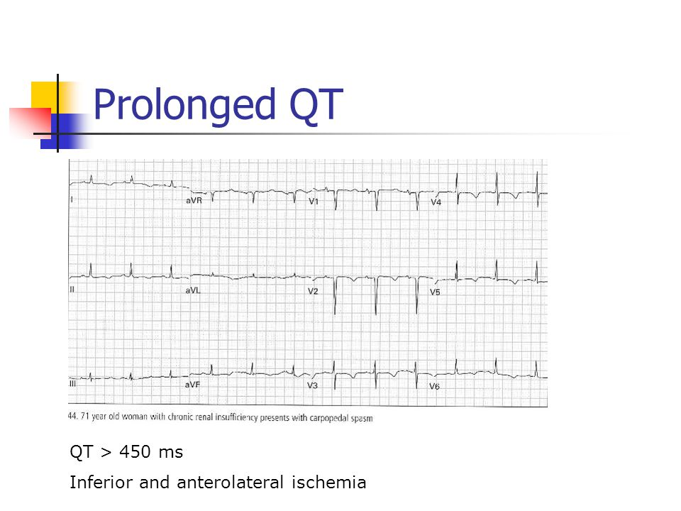 Prolonged QT QT > 450 ms Inferior and anterolateral ischemia