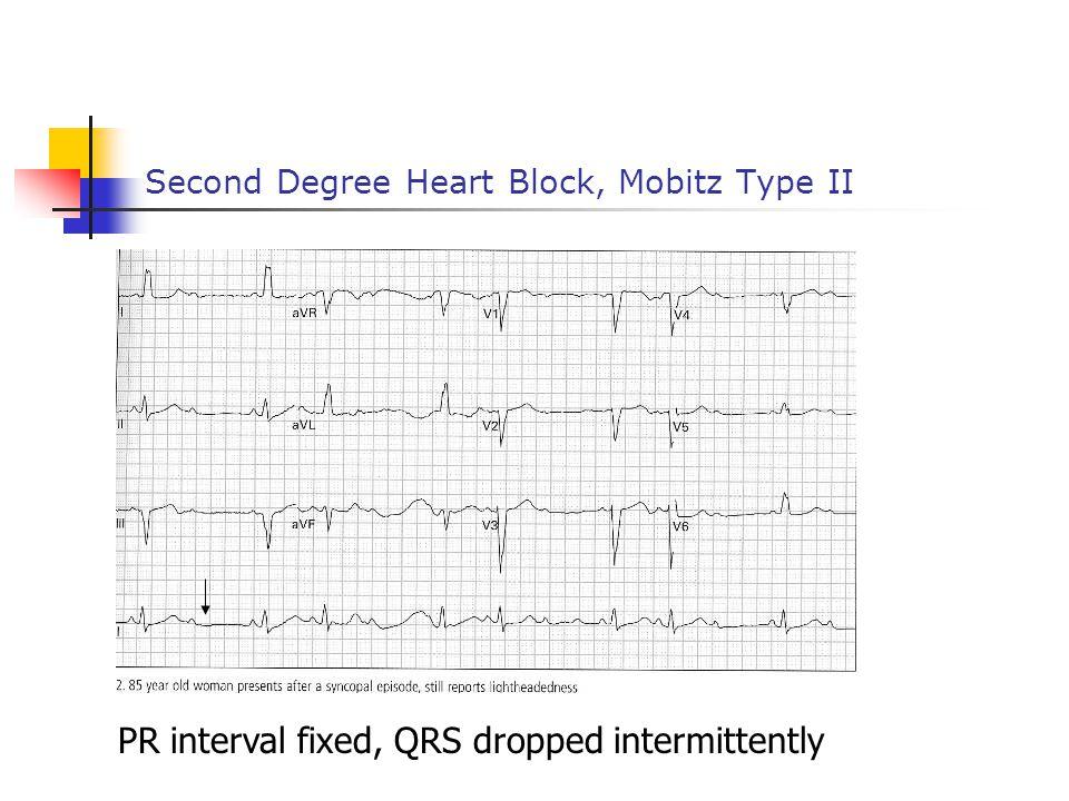 Second Degree Heart Block, Mobitz Type II