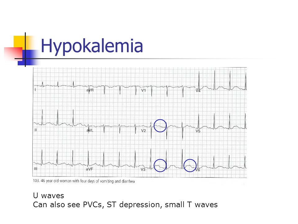 Hypokalemia U waves Can also see PVCs, ST depression, small T waves