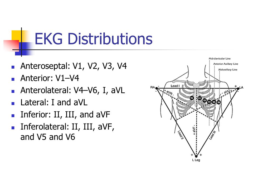 EKG Distributions Anteroseptal: V1, V2, V3, V4 Anterior: V1–V4
