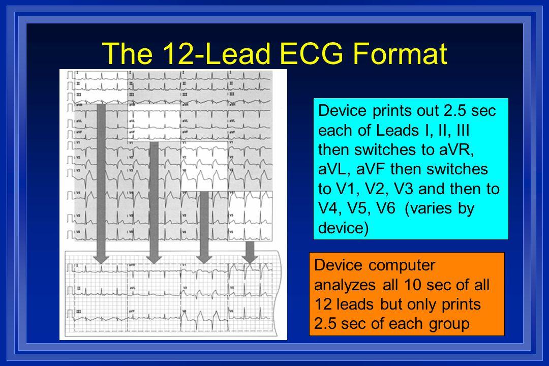 The 12-Lead ECG Format
