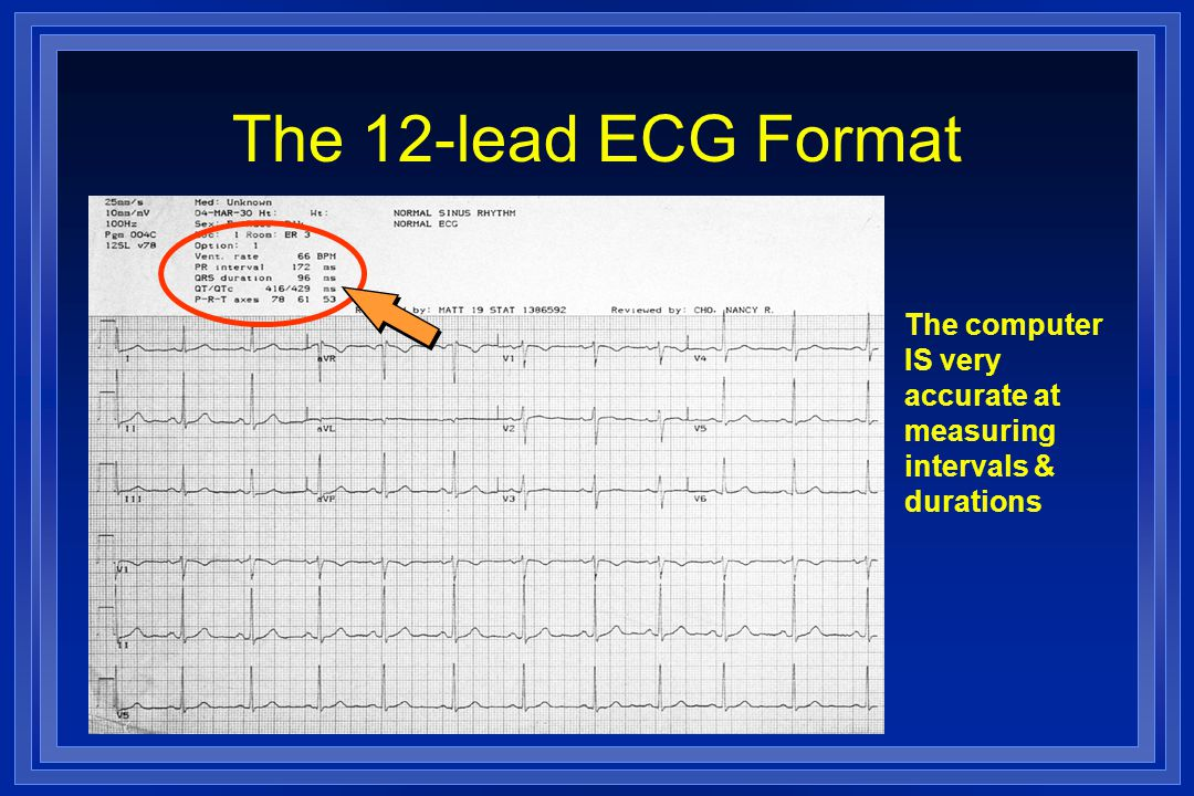 The 12-lead ECG Format The computer IS very accurate at measuring intervals & durations