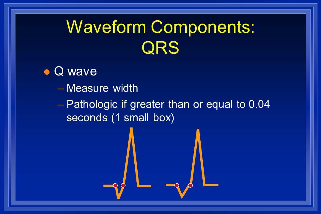 Waveform Components: QRS