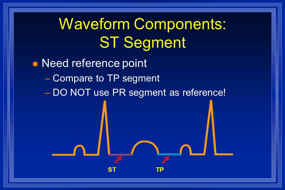 Waveform Components: ST Segment