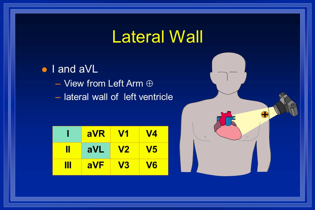 Lateral Wall I and aVL View from Left Arm 