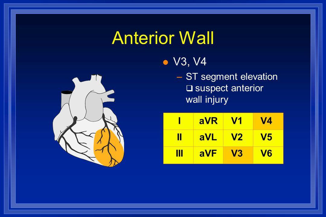 Anterior Wall V3, V4. ST segment elevation  suspect anterior wall injury. I. II. III. aVR. aVL.
