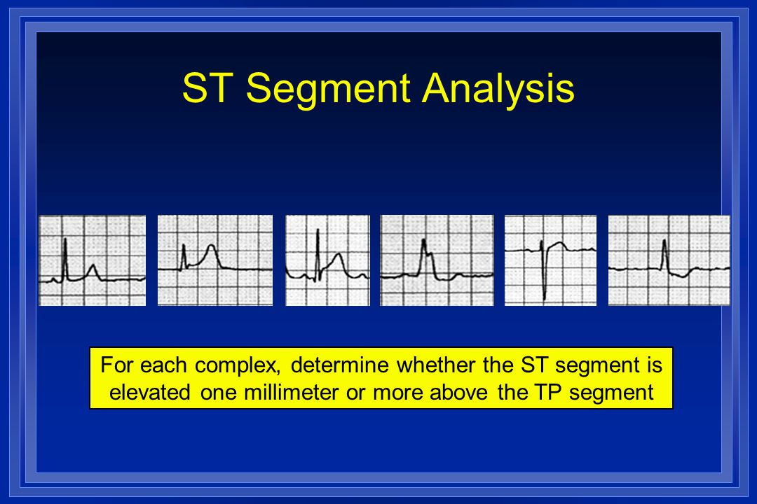 ST Segment Analysis For each complex, determine whether the ST segment is elevated one millimeter or more above the TP segment.