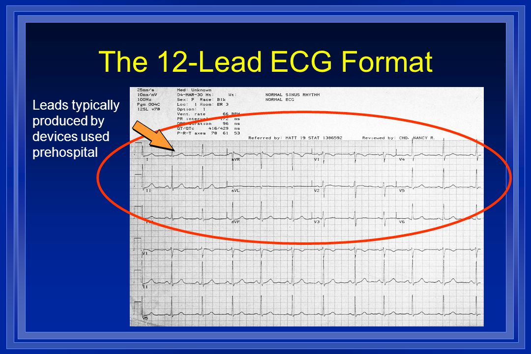 The 12-Lead ECG Format Leads typically produced by devices used prehospital